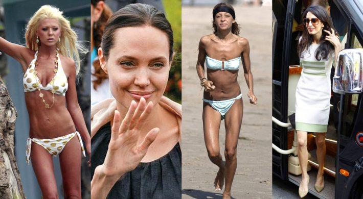 Αγαπημένες celebrities που πάλεψαν (και παλεύουν) με τη νευρική ανορεξία